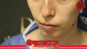 تزریق چربی | فیلم تزریق چربی | کلینیک پوست و مو رز | شماره۲۲