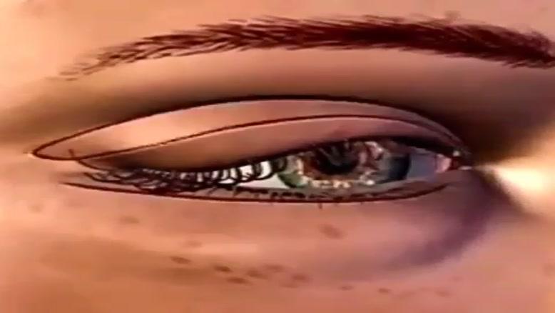 انیمیشن جراحی پلک