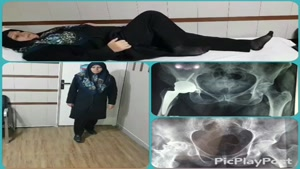 معاینه ی بیمار قبل و ۵ ماه بعد از جراحی تعویض مفصل لگن سمت راست