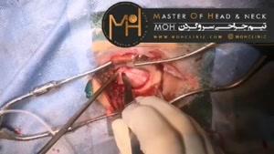 فیلم جراحی تومور قاعده جمجمه