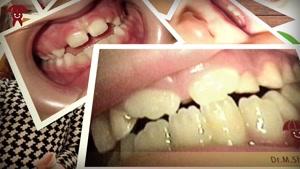 محدوده سنی دندانپزشکی کودکان