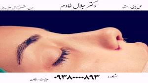 عمل بینی در مشهد |مشاوره رایگان ۰۹۳۸۰۰۰۰۸۹۳