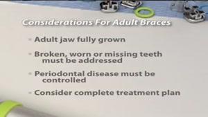 ارتودنسی دندان   کلینیک دندانپزشکی تاج