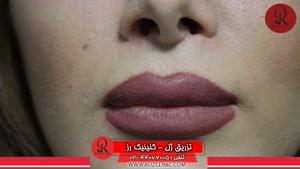 تزریق ژل | تزریق ژل لب | فیلم تزریق ژل | کلینیک پوست و مو رز | 18
