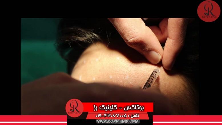 تزریق بوتاکس | فیلم تزریق بوتاکس | کلینیک پوست و مو رز ۱۴
