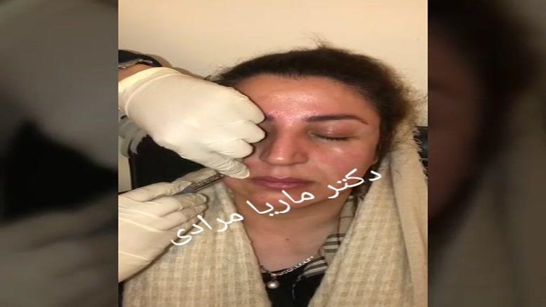 تزریق ژل به خط خنده | دکتر ماریا مرادی