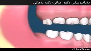 عوارض دندان عقل نهفته