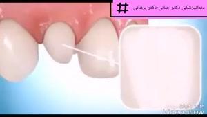 چگونه کامپوزیت ونیر روی دندان ها قرار می گیرد؟