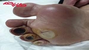 درمان زخم دیابتی انگشتان  و کف پا