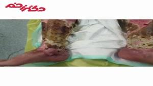 درمان دبریدمان وسیع ساق پا