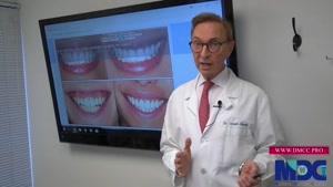 اصلاح لبخد لثه ای|کلینیک دندانپزشکی مدرن