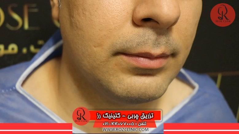 تزریق چربی | فیلم تزریق چربی | کلینیک پوست و مو رز | شماره35