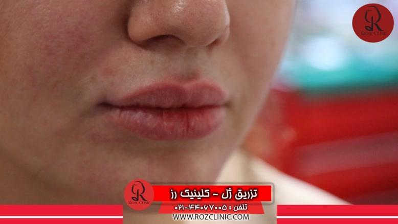 تزریق ژل | تزریق ژل لب | فیلم تزریق ژل | کلینیک پوست و مو رز |21
