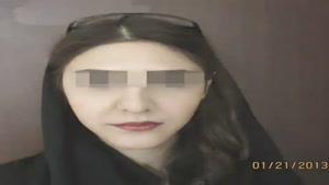 نمونه جراحی بینی در کرمان