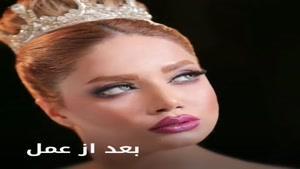 جراحی زیبایی بینی در کرمان