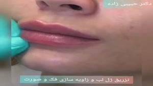 تزریق ژل لب و زاویه سازی فک و صورت