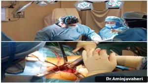 عمل جراحی تعویض مفصل لگن توسط دکتر علیرضا امین جواهری