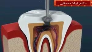 درمان عصب کشی دندان