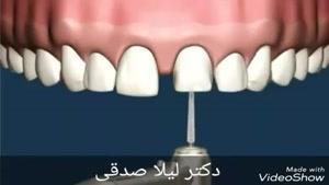 پر کردن فاصله بین دندان