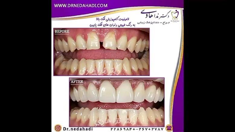 نمونه كارهای لمینت دندان | دکتر ندا هادی جراح و دندانپزشک زیبایی