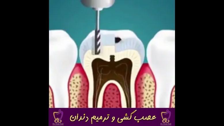 عصب کشی و ترمیم دندان | دکتر ندا هادی جراح و دندانپزشک زیبایی