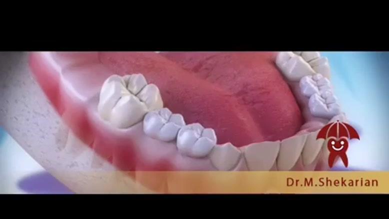 از دست رفتن زودتر از موعد دندان های شیری چه عوارضی دارد؟