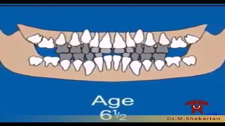 نحوه رویش دندان های شیری و دائمی در کودکان
