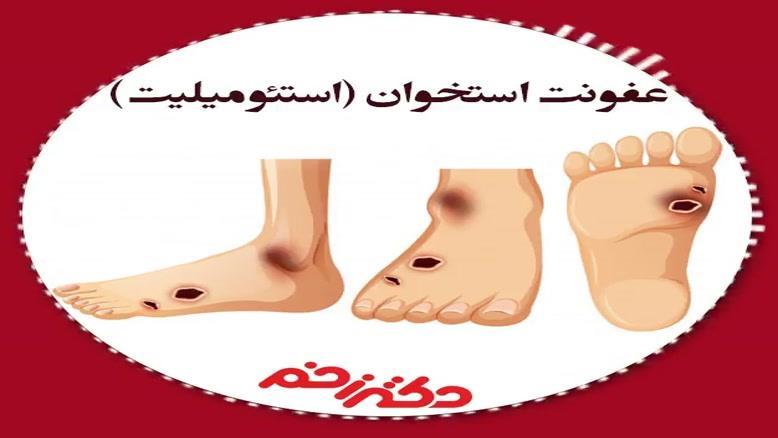 صحبت های دکتر جمال میرزایی در مورد عفونت استخوان