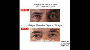 درمان فیزیوتراپی بیماری بلز چیست