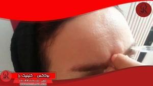 تزریق بوتاکس | فیلم تزریق بوتاکس | کلینیک پوست و مو رز ۱۵
