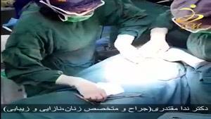 سزارین دوقلو توسط دکتر ندا مقتدری