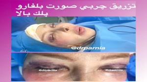 جراحی زیبایی پلک همزمان با تزریق چربی به صورت