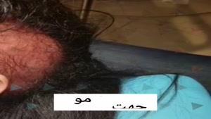 میکرونیدلینگ همراه با مزوتراپی برای درمان ریزش مو