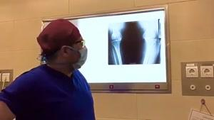 فیلم جراحی تعویض مفصل زانوی خانم ۱۲۰ کیلوگرمی!!!!