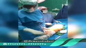 علت آرتروز زانو و جراحی در سن پایین؟