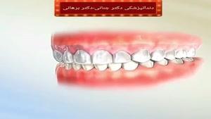 نقش نگهدارنده بعد از اتمام درمان ارتودنسی دندان