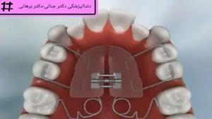 استفاده از دستگاه پندولوم