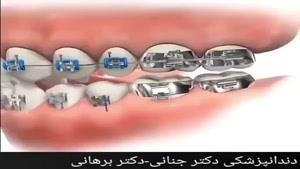 عوامل آسیب زا به ارتودنسی دندان