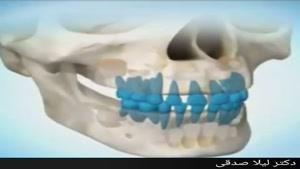 مراحل رشد و تکامل دندان