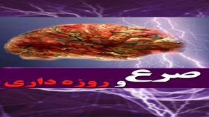 صحبت های دکتر علیرضا یار احمدی در مورد صرع و روزه داری