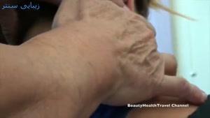 اپیلاسیون بدن - از بین بردن موهای زائد بدن - دست و پا - زیبایی سنتر