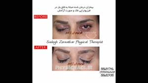 درمان فلج صورت ، فیزیوتراپیست صادق زراعتکار