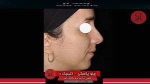 جراحی بینی | فیلم جراحی بینی | کلینیک پوست و مو رز|شماره 3