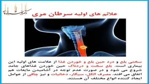 علائم اولیه سرطان مری