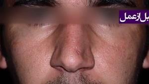 نمونه جراحی بینی گیلدا گیوه چی