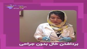 فیلم برداشتن خال با دستگاه آر. اف و بدون جراحی