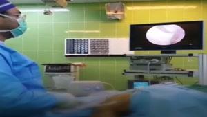 جراحی رباط صلیبی زانو حین عمل