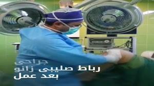 جراحی رباط صلیبی زانو بعد از عمل