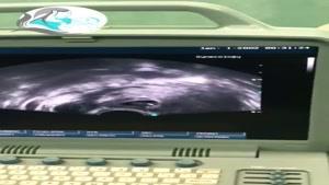 بارداری خارج رحمی در لاین سزارین قبلی