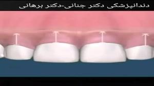 جراحی افزايش طول دندان